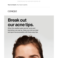 4 tips for breakouts.